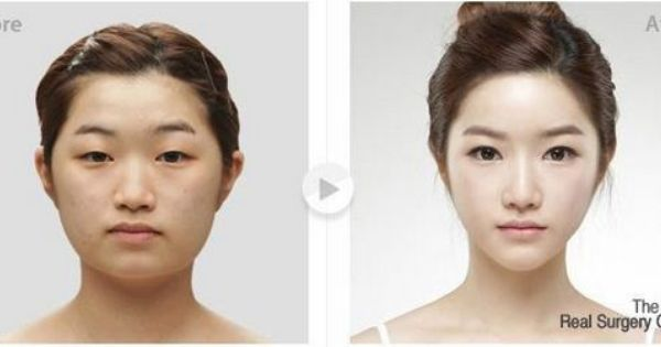 Chin Reduction Surgery In Korea Chin Implant Before And After Plastic Surgery Facial Contouring Combination Skin Care