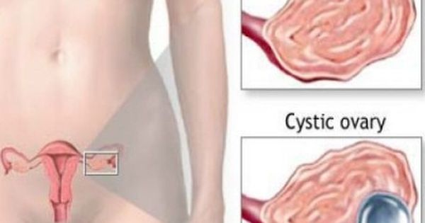 Ovarian Cyst Relief Natural Way