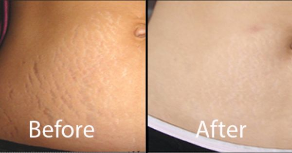 how to get rid of the texture of stretch marks