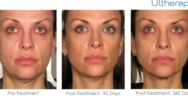 Find Out More About Burnett Plastic Surgery S New Non Surgical Ultherapy Procedure For Tighter Firmer Skin Ultherapy Plastic Surgery Neck Surgery