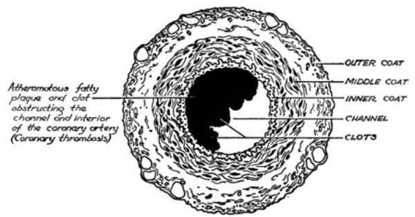 Artery Cross Section Diagram Ems Pinterest