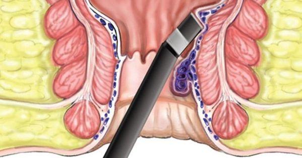 ماهي البواسير الداخلية وما أعراضها وأسبابها وكيفية علاجها Laser Treatment Natural Health Tips Treatment