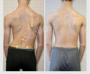 Scoliosis Improvement Scoliosis Exercises Scoliosis Scoliosis Treatment