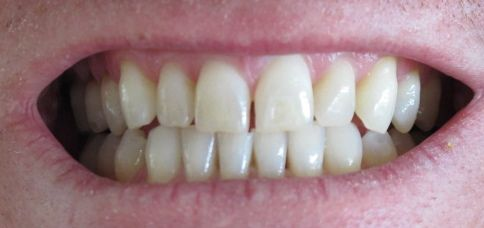 how to get a whiter smile at home