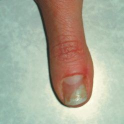 Acrylic Nail Fungus Causes And Treatment Toenail Fungus Remedies Nail Fungus Cure Nail Fungus Treatment