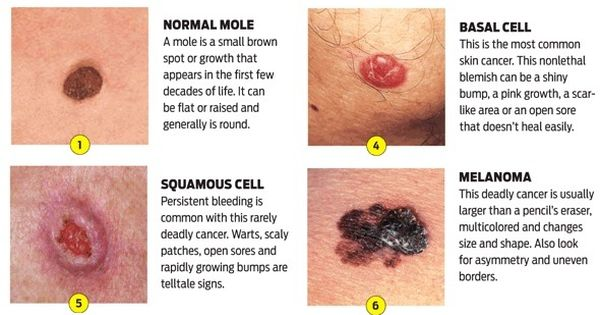 The Most Serious Type Of Skin Cancer Is The Malignant