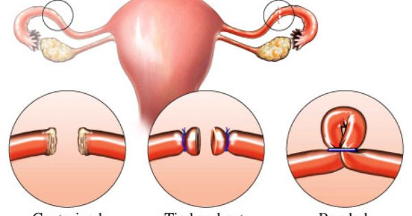 What Is Female Sterilisation The Tubes Between The Ovary