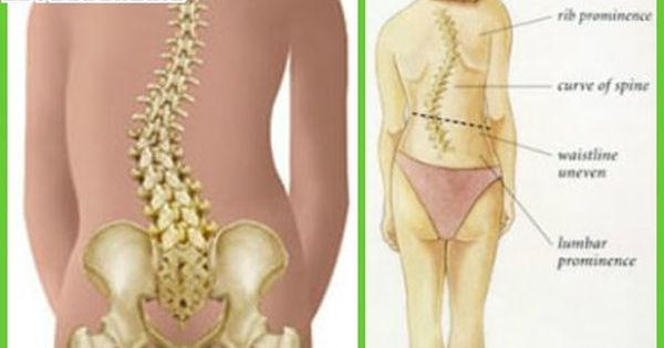 Levoscoliosis - What is?, Symptoms, Causes, Treatment ...
