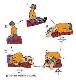 Epley Maneuver Exercises For Vertigo Ent Clinic Epley Maneuver Vertigo Treatment Vertigo Causes