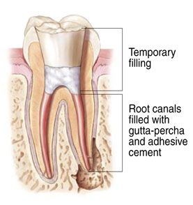 Why You Should Avoid A Root Canal Root Canal Root Canal Treatment Dental Crowns