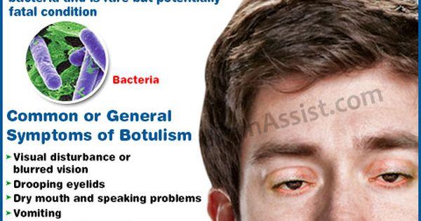 botulism symptoms medscape