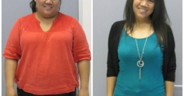 before after gastric bypass woman | Weight Loss Progress | Pinterest ...