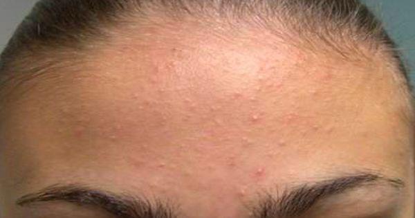 Les moyens des cheveux frisés chez les hommes