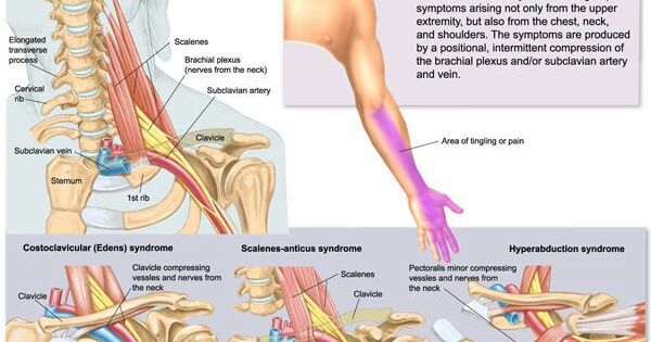 Thoracic Outlet Syndrome Massage Biznes Pinterest