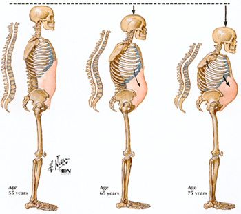 27++ What happens to bones when someone has osteoporosis viral