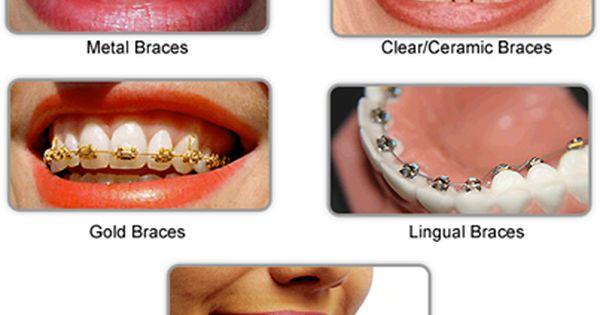 Choosing Right Type Of Braces Dental Care Identalhub