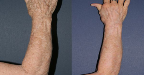 Before And After Photos Of Cosmetic Dermatology Treatments Cosmetic Dermatology Laser Treatment Dermatology