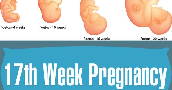 Sudden Sharp Pain 26 Weeks Pregnant Gastronomia Y Viajes