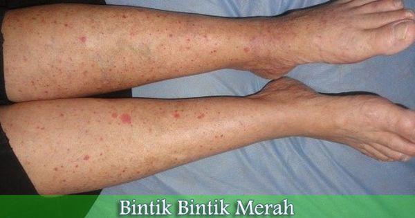 42+ Penyakit gatal pada kaki inspirations