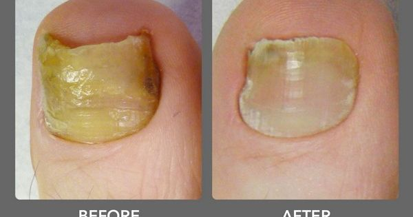 Nail Fungus Treatment Over The Counter Belleza