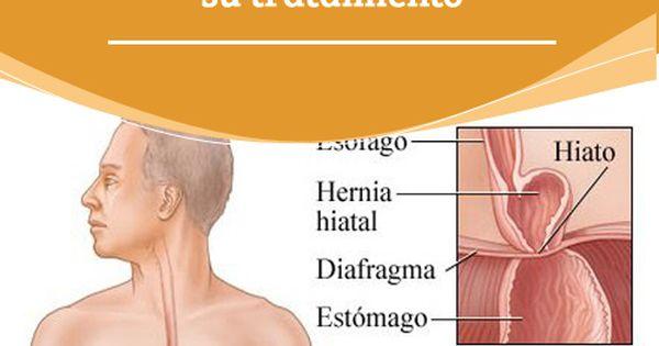 Hernia de hiato remedios naturales para su tratamiento el exceso de peso as como el embarazo - Alimentos prohibidos para la hernia de hiato ...
