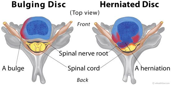 Bulging and herniated disc difference, symptoms ...