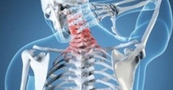 Cervical Osteoarthritis (Cervical Spondylosis)