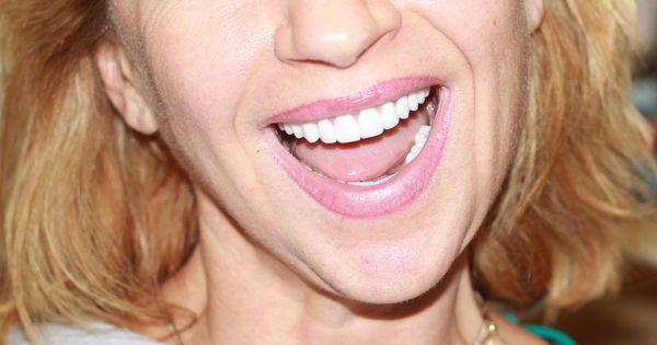 dental implants half price atlanta