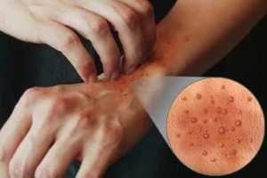 Para alergias naturales de la piel remedios