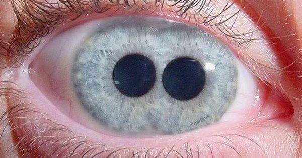 Eye With 2 Pupils,pupula duplex,double pupil | Random