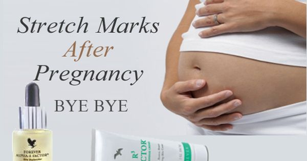 how to get rid of silver stripes and stretch marks