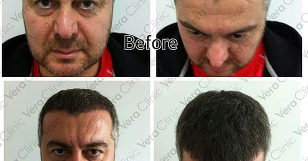 Pin By Vera Clinic On Staying Best Hair Transplant Art Of Beauty Hair Transplant