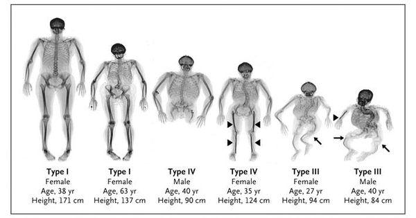 See A Cure 4 Osteogenesis Imperfecta Brittle Bone Disease
