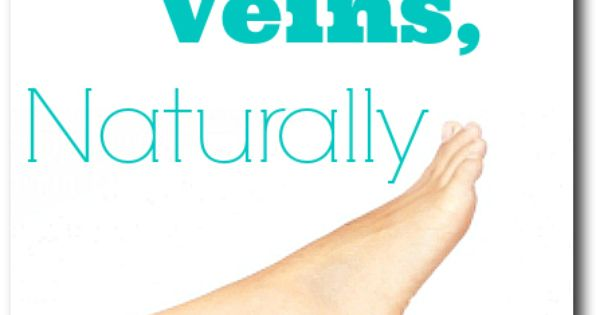 how to avoid varicose veins naturally