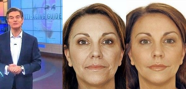 Dr Oz Face Cream >> Cher Is Back On The Charts With Woman S World Anti Aging