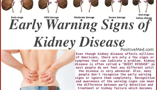 Kidney Stone Pain Location Male 11 Kidney Damage Sympt...