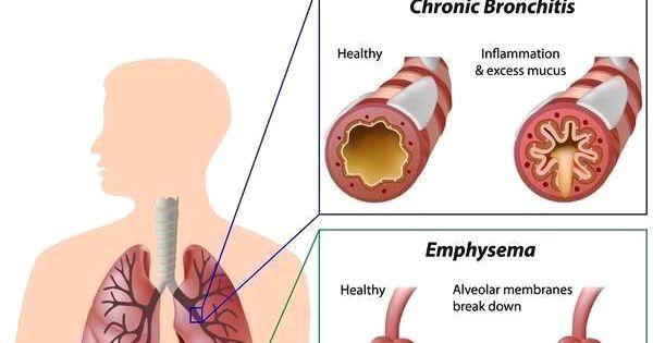 Natural Ways To Fight Bronchitis