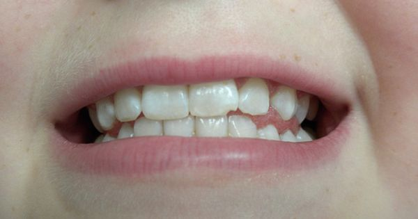 Dscn0071 Tooth Repair Chipped Tooth Repair Chipped Tooth