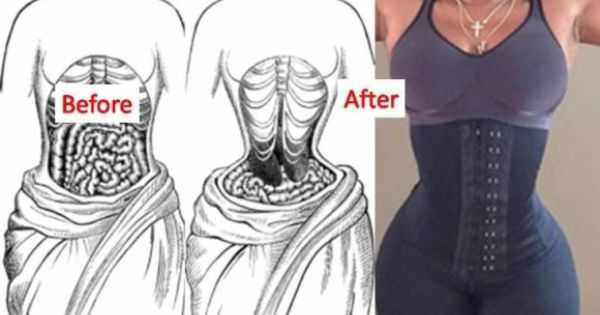 before and after corset training pictures - Google Search ...