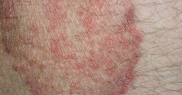 Natural Ways To Get Rid Of Jock Itch