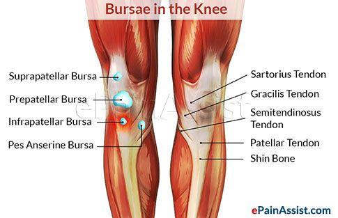 Astepaway New Search Experience Bursitis Treatment Bursitis Bursitis Knee