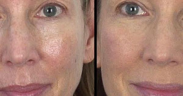 ... best-makeup-for-rosacea-and-large-pores/ : Rosacea : Pinterest : Best