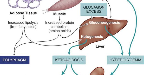 essay on diabetic ketoacidosis Diabetic ketoacidosis is caused by consistently high blood sugar levels diabetic ketoacidosis is a dangerous complication of diabetes more about diabetic.