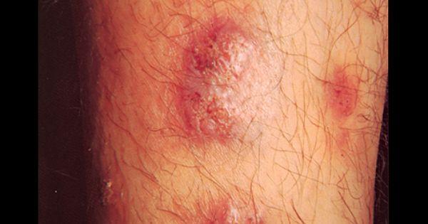 Iododerma And Bromoderma Granulomatous Reaction Skin