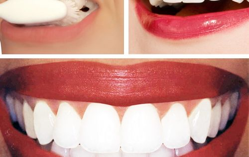 Best fashion tip ever, white teeth. Dr. Oz Teeth Whitening Home Remedy: