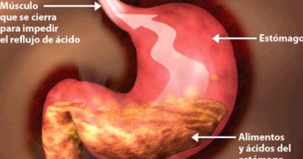 Dieta Adecuada Para Personas Con Reflujo Mejor Con Salud Reflujo Gastroesofágico Gastritis Dieta Remedios Para La Gastritis