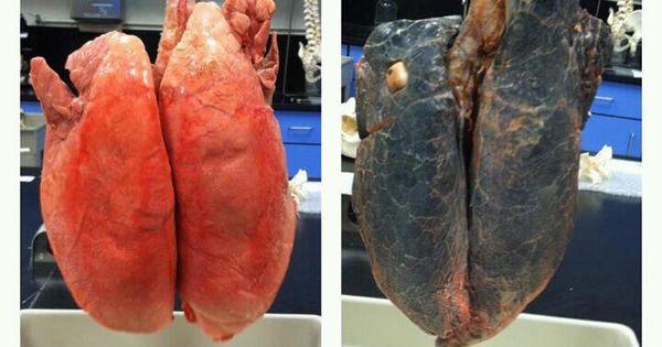 Smoker dating a non smoker BIG SHOTS