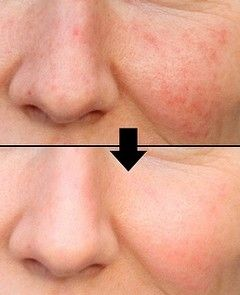 How To Get Rid Of Blotchy Skin On Face