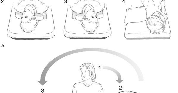 how to help positional vertigo