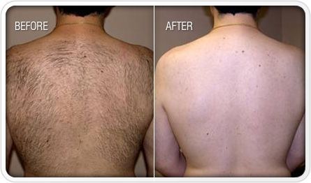 Safety Issues Regarding Laser Hair Removal Chest Hair Removal Best Hair Removal Cream Hair Removal Cream